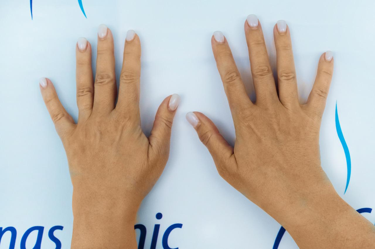 käte täitesüstid, käte niisutamine, kuivad käed, kortsus käed, täitesüst, ilusüstid, biorevitalisatsioon, Christinas Clinic, iluprotseduurid, iluprotseduur
