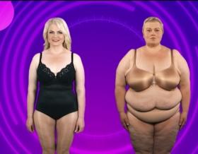 Minu imeline muutumine, 360 degree liposuction, selja rasvaimu, rasvavoldid seljal, back liposuction, midsection liposcution, 360 degree liposuction, liposuction, rasvaimu, липосакция, 360 kraadi rasvaimu, kehaproportsioonid, liivakellafiguur, fat, plastiikkakirugia, ilukliinik, plastiline kirurgia, esteetiline kirurgia, esteetilise kirurgia kliinik, kauneusklinikka, esteettinen kirurgia, esteettisen kirurgian klinikka, kauneusklinikka Virossa, esteettinen kirurgia Helsingissä, косметологические операции, пластическая хирургия в Таллине, kauneusleikkaukset, plastiikkakirurgia, plastikakirurg, plastic surgeon Tallinn, plastiikkakirurgi, beauty clinic, aesthetic surgery clinic, plastic surgery clinic Tallinn, surgery Tallinn, aesthetic surgery Estonia, клиника красоты, эстетическая хирургия, клиника эстетической хирургии, пластическая хирургия, клиника пластической хирургии, Christinas Clinic, iluoperatsioonid, dr Ants Viiklepp, laserprotseduurid, iluoperatsioon, ilulõikused Tallinnas, ilukirurgia, Merike Minu imeline muutumine, kõhuplastika, rindade vähendamine, kaalukirurgia, maovähendus, kehakaalu vähendamine, käteplastikad, weight loss surgery,eyelid surgery, silmalaugude plastika, näo korrigeerimine, facelift, breast lift, rindade tõstmine,