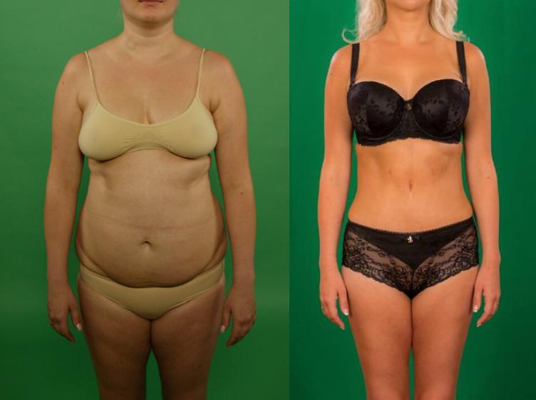 Christinas Clinicu patsient: enne-pärast pildid