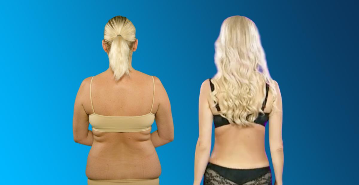 360 degree liposuction, selja rasvaimu, rasvavoldid seljal, back liposuction, midsection liposcution, 360 degree liposuction, liposuction, rasvaimu, липосакция, 360 kraadi rasvaimu, kehaproportsioonid, liivakellafiguur, fat, plastiikkakirugia, ilukliinik, plastiline kirurgia, esteetiline kirurgia, esteetilise kirurgia kliinik, kauneusklinikka, esteettinen kirurgia, esteettisen kirurgian klinikka, kauneusklinikka Virossa, esteettinen kirurgia Helsingissä, косметологические операции, пластическая хирургия в Таллине, kauneusleikkaukset, plastiikkakirurgia, plastikakirurg, plastic surgeon Tallinn, plastiikkakirurgi, beauty clinic, aesthetic surgery clinic, plastic surgery clinic Tallinn, surgery Tallinn, aesthetic surgery Estonia, клиника красоты, эстетическая хирургия, клиника эстетической хирургии, пластическая хирургия, клиника пластической хирургии, Christinas Clinic, iluoperatsioonid, dr Ants Viiklepp, laserprotseduurid, iluoperatsioon, ilulõikused Tallinnas, ilukirurgia,