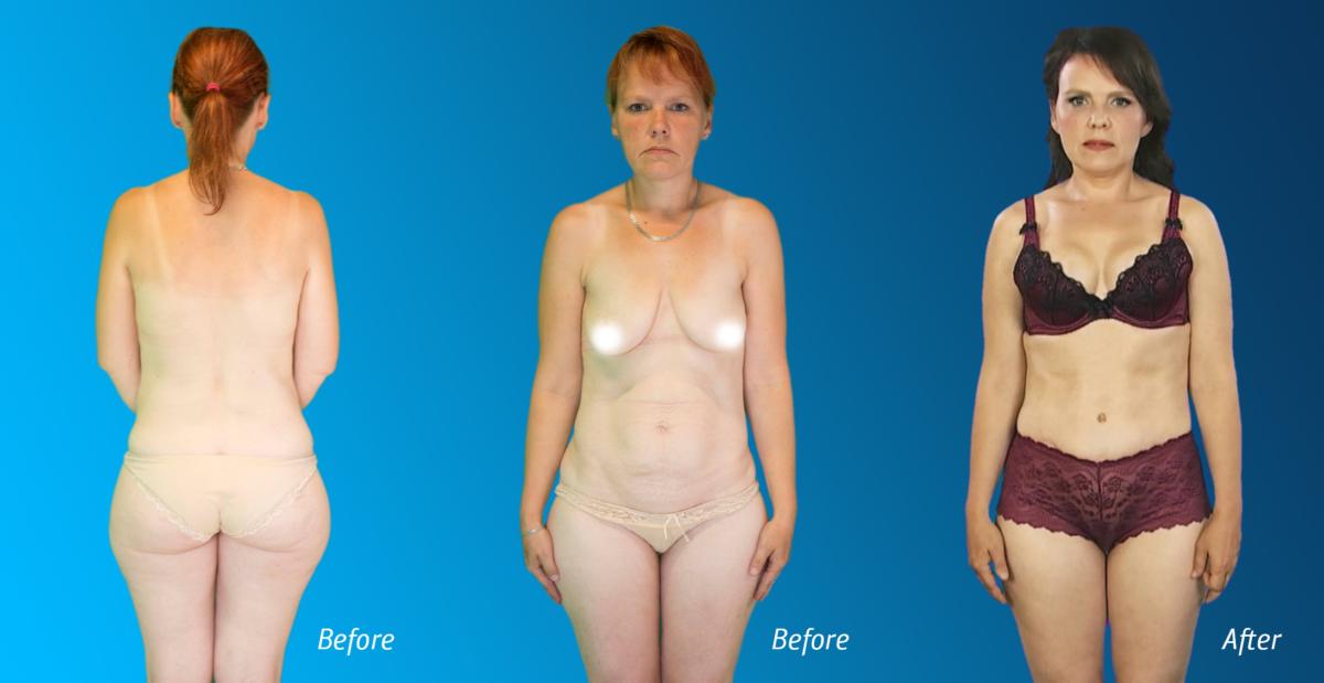 mommy makeover, mommy makeover, 360 degree liposuction, liposuction, rasvaimu, rasvasiirdamine rindadesse, lipofilling breasts, emade imeline muutumine, emade pakett, esteetiline kirurgia, ilukliinik, Christinas Clinic, tv3, Duubel, minu imeline muutumine, iluoperatsioon, ilukirurgia, iluoperatsioonid, rindade tõstmine, kõhuplastika, diastaas, lõuaimplantaat, lõua endoproteesimine, lõua korrigeerimine implantaadiga, rasvasiirdamine näopiirkonda, silmalaugude plastika, ilusüstid, täiteüstid, huulte suurendamine, huulte korrigeerimine, botox, botoks, botuliintoksiini süstid, täiteüstid, miimikakortsud, Mommy makeover Tallinn, ilukirurgia Tallinnas, plastikakirurg, plastiline kirurgia, ilukirurg, äitien ihmemuutos, äitipaketti, esteettinen kirurgia, kauneusklinikka, Christinas-klinikka, tv3, Tupla, ihmeellinen muutokseni, kauneuskirurgia, kosmeettinen kirurgia, kauneuskirurgiat, rintojen lisäys, vatsakirurgia, diastaasi, leukaimplantti, leuan endoproteesit, leuan korjaus , silmäluomen muovit, kauneusinjektiot, täyteaineet, huulten lisäys, huulten korjaus, botox, botox, botuliinitoksiininjektiot, täyteaineet, matkimat ryppyjä, Äiti-muunnos Tallinna, kosmeettinen kirurgia Tallinnassa, plastiikkakirurgi, plastiikkakirurgia, kosmeettinen kirurgi, чудесное изменение матери, пакет для матерей, эстетическая хирургия, клиника красоты, клиника Кристинас, tv3, Double, мои чудесные изменения, косметическая хирургия, косметическая хирургия, косметические операции, увеличение груди, абдоминальная хирургия, диастаза, имплантация челюсти, эндопротезирование челюсти, восстановление челюсти , пластика век, косметические инъекции, пломбирование, увеличение губ, коррекция губ, ботокс, ботокс, инъекции ботулинического токсина, пломбирование, мимические морщины, макияж мамы Таллинн, косметическая хирургия в Таллине, пластический хирург, пластическая хирургия, косметический хирург,